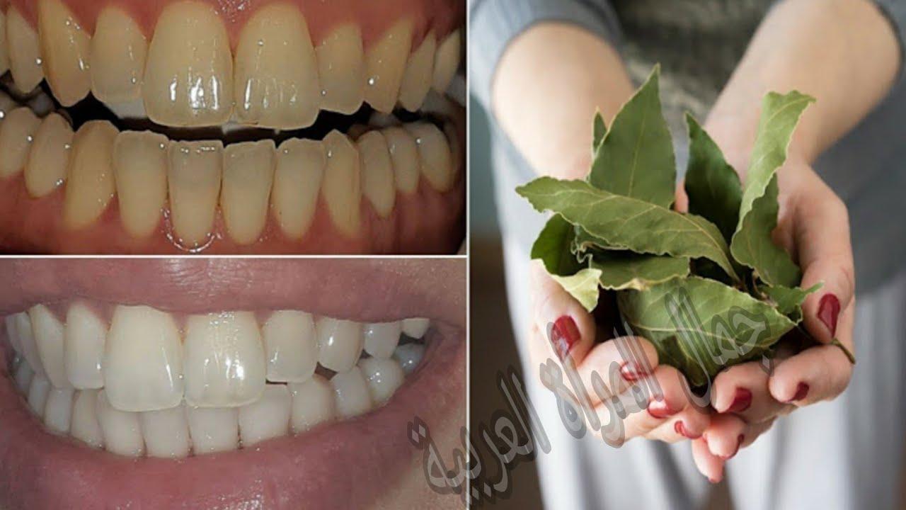 افرك بها اسنانك دقيقتين ستصبح بيضاء كاللؤلؤ اسرع مكون بمفعول سحري لتسوس الاسنان و الترسبات