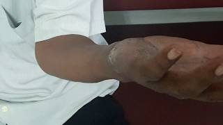 Single hand lesion probably fungus. Tinea Manuum. Gentamicin280mg