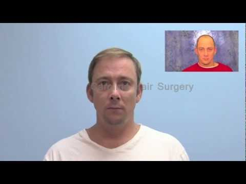 Natural Hair Transplant Results with FUE | Carolina Hair Surgery