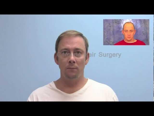 Natural Hair Transplant Results with FUE | Carolina Hair Surgery