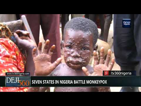 DEJI360 EP 178 Part 1: Seven states in Nigeria battle Monkeypox (Nigerian News)