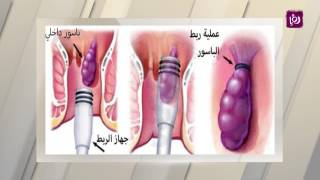 د. عمرمنصور - النزيف الشرجي أسبابه وطرق علاجه