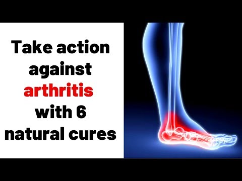 Take action against arthritis with 6 natural cures