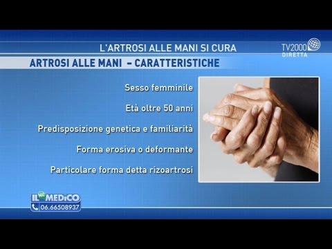 Artrosi alle mani: fattori di rischio, sintomi, cura e prevenzione