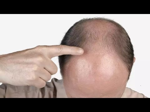 Best Male Or Female Pattern Baldness Treatments YouTube Awesome Male Or Female Pattern Baldness Treatments