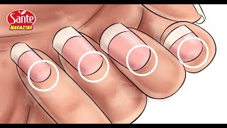 Si vous n'avez pas une forme de demi-lune sur vos ongles, allez voir d'urgence un médecin !