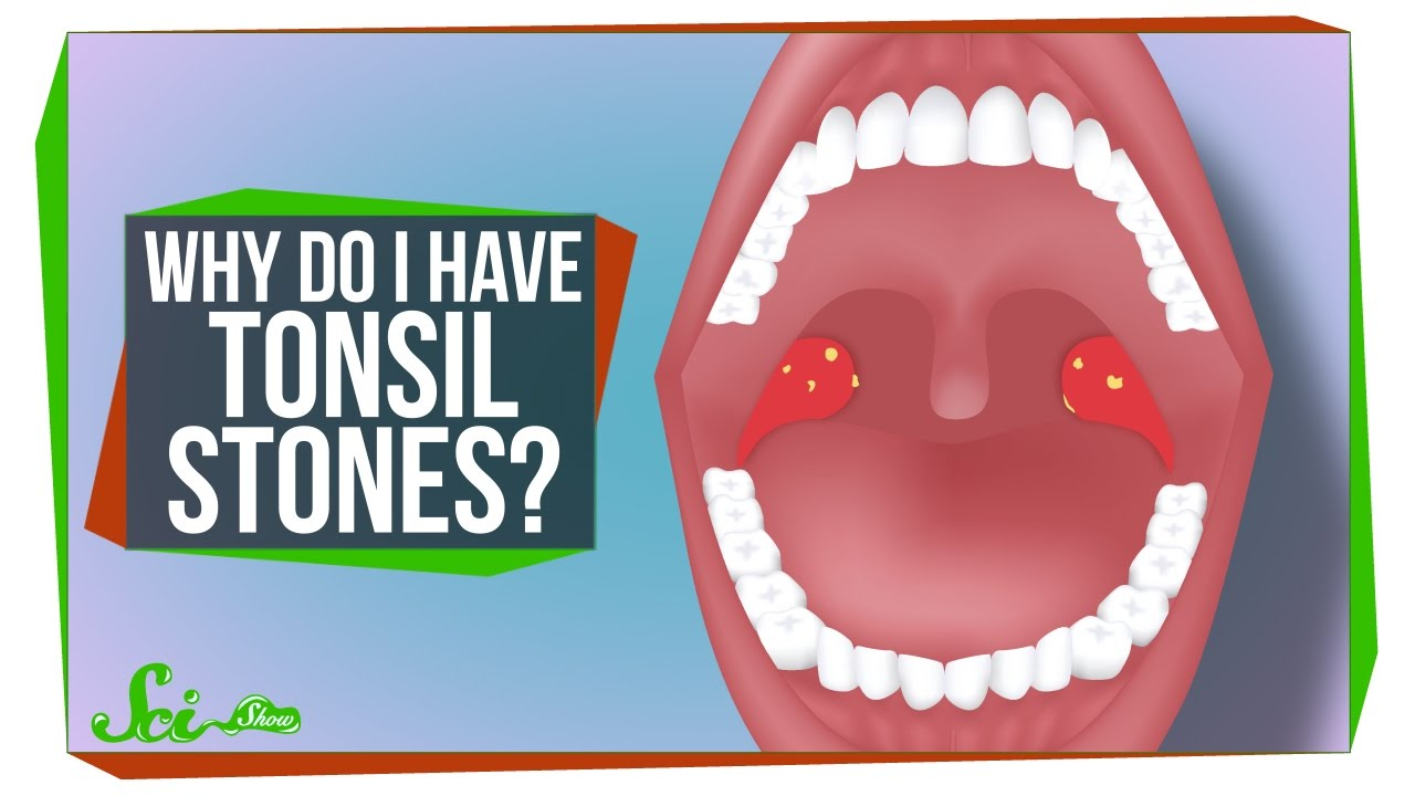 Why Do I Have Tonsil Stones?