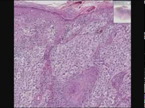 Рак кожи или меланома: как определить болезнь, симптомы