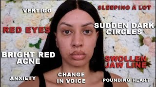 UPDATE & FIRST SIGNS OF IMPLANT ILLNESS DOCUMENTARY PART 2