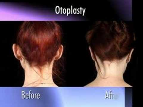 Dr. Nachbar on Otoplasty (ear pinning)