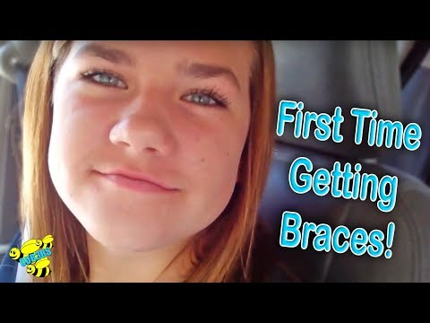 GETTING BRACES ON! ? ~ Part 2