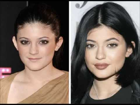 Kylie Jenner: Before and After - YouTube