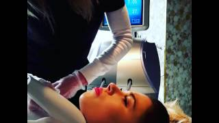 Body Sculpting & Skin Tightening using V-shape by Alma Lasers
