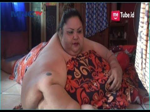 Kisah Wanita Obesitas Berbobot 350 Kilogram Di Kalimantan, Suka Ngemil Dan Minum Es - LIP 08/01