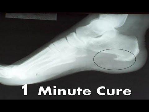 Plantar Fascia Heel Spur Pain [BEST Home Treatment & Remedies 2020!]