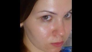 Жирная кожа лица. Причины, методы борьбы