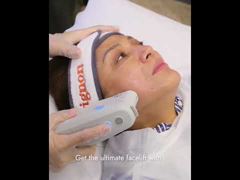 Cherry Pie Picache Visits Avignon Clinic For A Face Lift Using Ulthera Ultimate Lift Watch Youtube