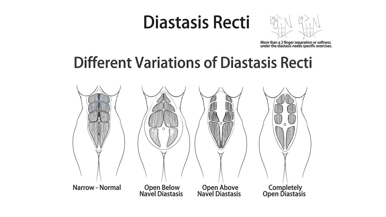 what is a diastasis and can you fix it core exercise solutions [ 1280 x 720 Pixel ]