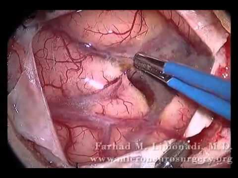 Human brain surgery!! Brain surgery removal of metastatic tumor