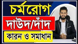 চর্মরোগ দাউদ/দাঁদ হওয়ার কারন ও সমাধান। Physical care bangla pro