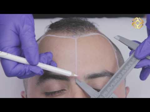 Tricopigmentación la Solución para la calvicie