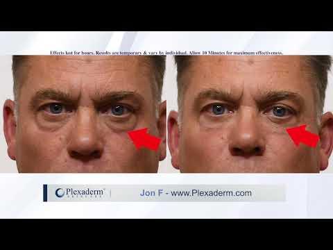 Plexaderm Reviews - YouTube