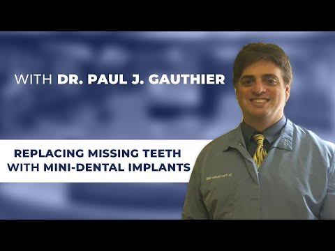 Replacing Missing Teeth with Mini-Dental Implants with Charlton, NY dentist Paul J. Gauthier, DMD