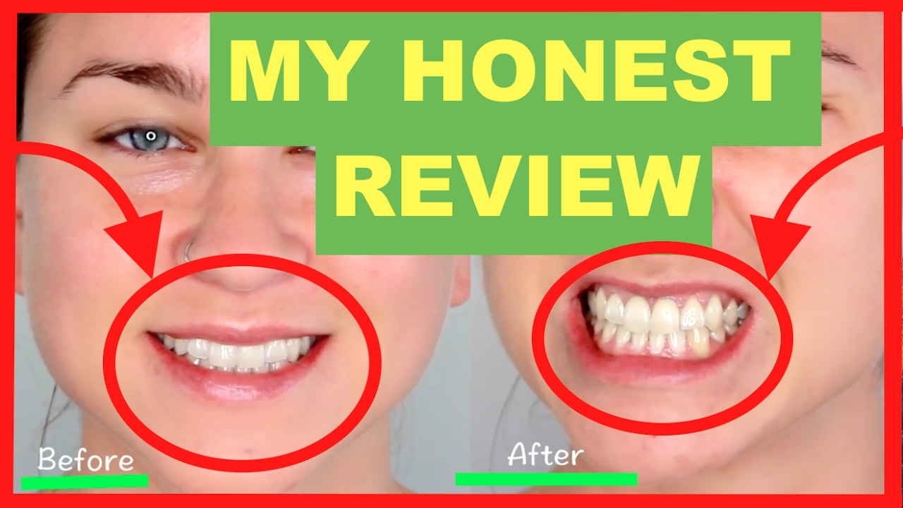 charcoal teeth whitening powder review 2017 before and after youtube. Black Bedroom Furniture Sets. Home Design Ideas