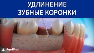 Удлинение зубные коронки ©(3D-видео Clínica Pardiñas (http://bit.ly/1AWGytT) об удлинении зубные коронки — методе периодонтальной хирургии, который..., 2016-11-28T13:14:50.000Z)