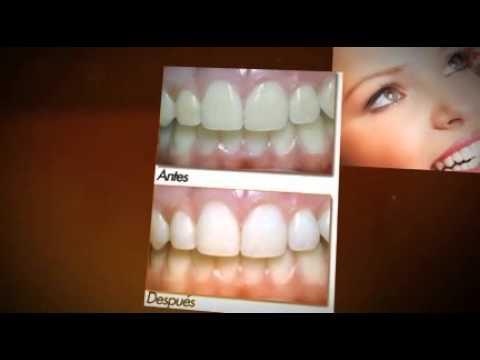Cuanto cuesta un blanqueamiento dental youtube - Cuanto cuesta acristalar un porche ...