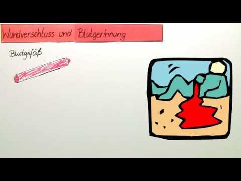 blutgerinnung wundverschluss im blutgef biologie biologie des menschen mittelstufe. Black Bedroom Furniture Sets. Home Design Ideas