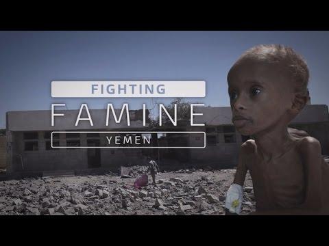Yemen suffering world's largest humanitarian crisis