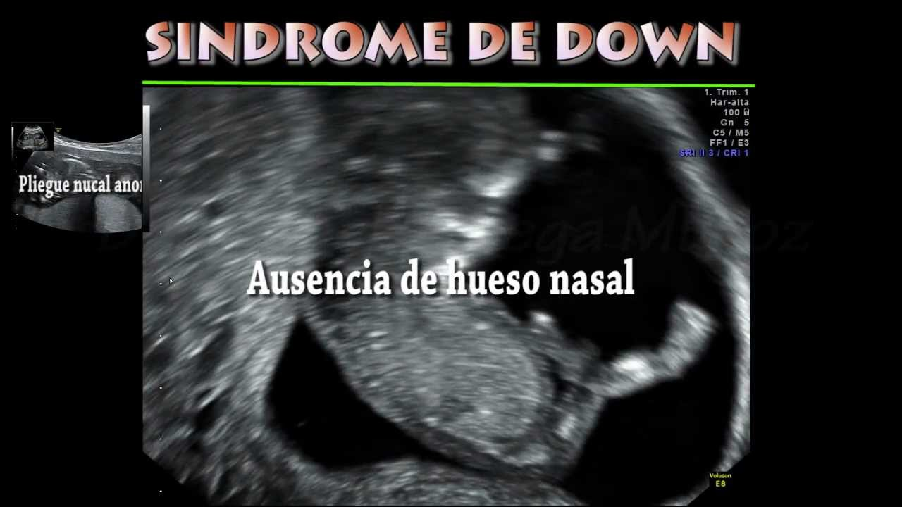 Feto com sindrome de down