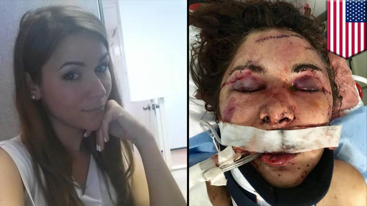 Mujer en coma luego de ser atacada por hombre que ...