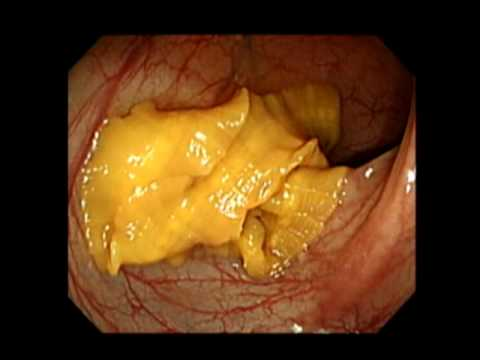 Live Diphyllobothrium Latum During Colonoscopy