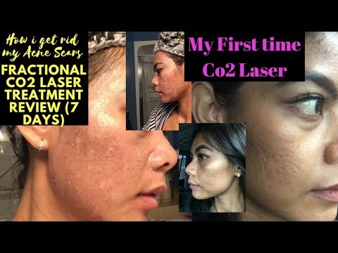 Acne Scars Removal (First time Co2 laser treatment 7 Days Review)