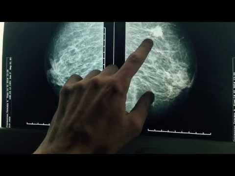 Как делается маммография молочных желез видео