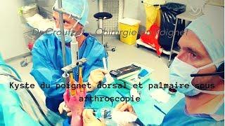 Kyste du poignet dorsal et palmaire sous arthroscopie
