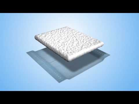 Super absorbent fibres and nonwoven fabrics for wound care/medical applications.