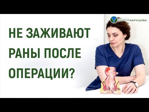 НЕ ЗАЖИВАЮТ РАНЫ ПОСЛЕ ОПЕРАЦИИ? Проктолог отвечает | незаживающая | удаления | удаление | операции | геморроя | геморрой | делать | после | рана | что