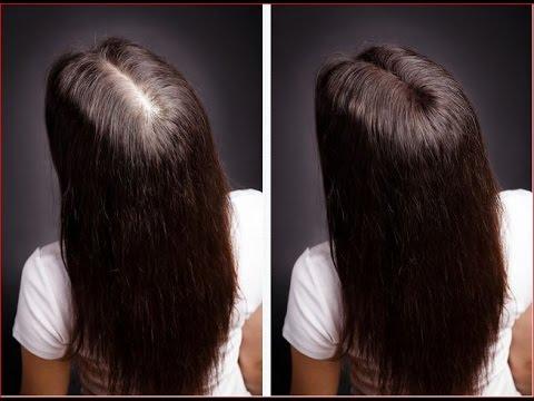 Выпадение волос после родов причины и лечение - YouTube