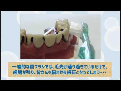スティア― 360度毛歯ブラシ 驚異的な歯垢除去力