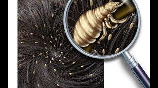 Çocukların Saçında Bit Çıkmasının Neye Sebep Olduğunu Biliyor musunuz ?  Dikkatli Olun