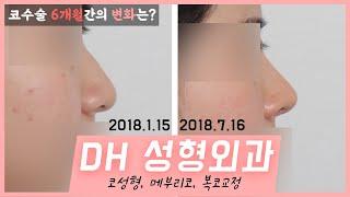 [부산 코]DH 코성형(길이 축소),메부리코, 복코 교…