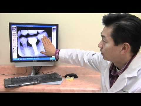 Implant Dentist Las Vegas, Dental Implants Las Vegas