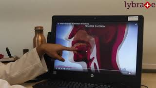Aspiration Pneumonia || By Lybrate Dr Vikas Mittal