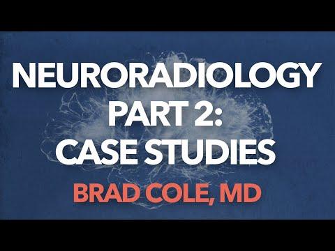 Neuroradiology Part 2: Case Studies