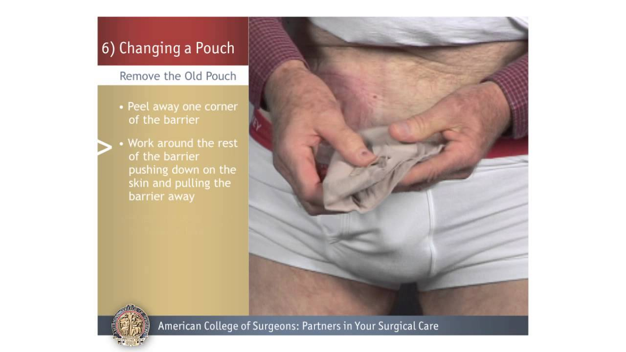 Replacing the Colon With a Pouch
