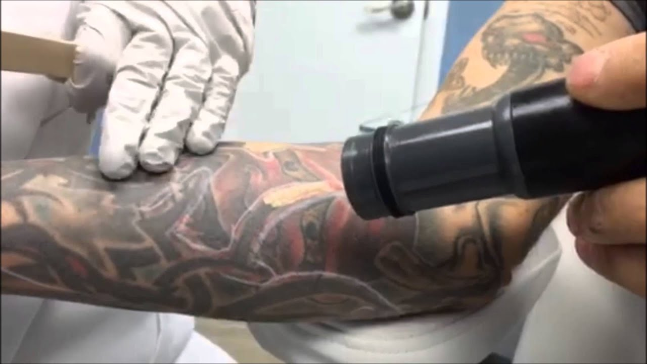 Detailed Laser Tattoo Removal Burke, VA, Northern VA, Fairfax County ...