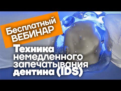 Техника немедленного запечатывания дентина. Бесплатный вебинар.